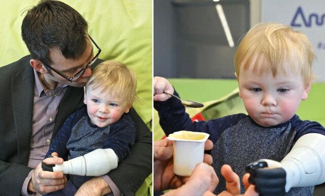 Pappa skapade en ny arm till sin son – med hjälp av en 3D-skrivare