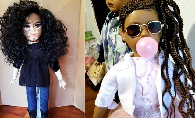 Artisten skapar dockor med vitiligo - vill att alla barn ska känna sig sedda