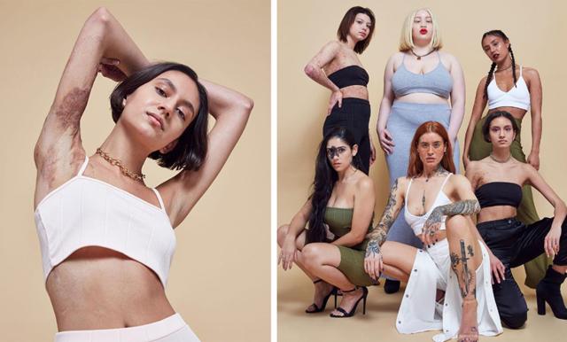 Reklamkampanjen utmanar alla skönhetsideal och vi älskar det!
