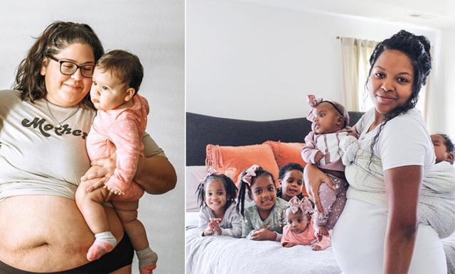 Nya hashtaggen hyllar mammakroppen – visar den vackra verkligheten