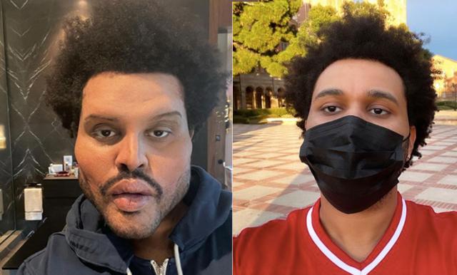 Här chockar The Weeknd alla med sitt nya utseende