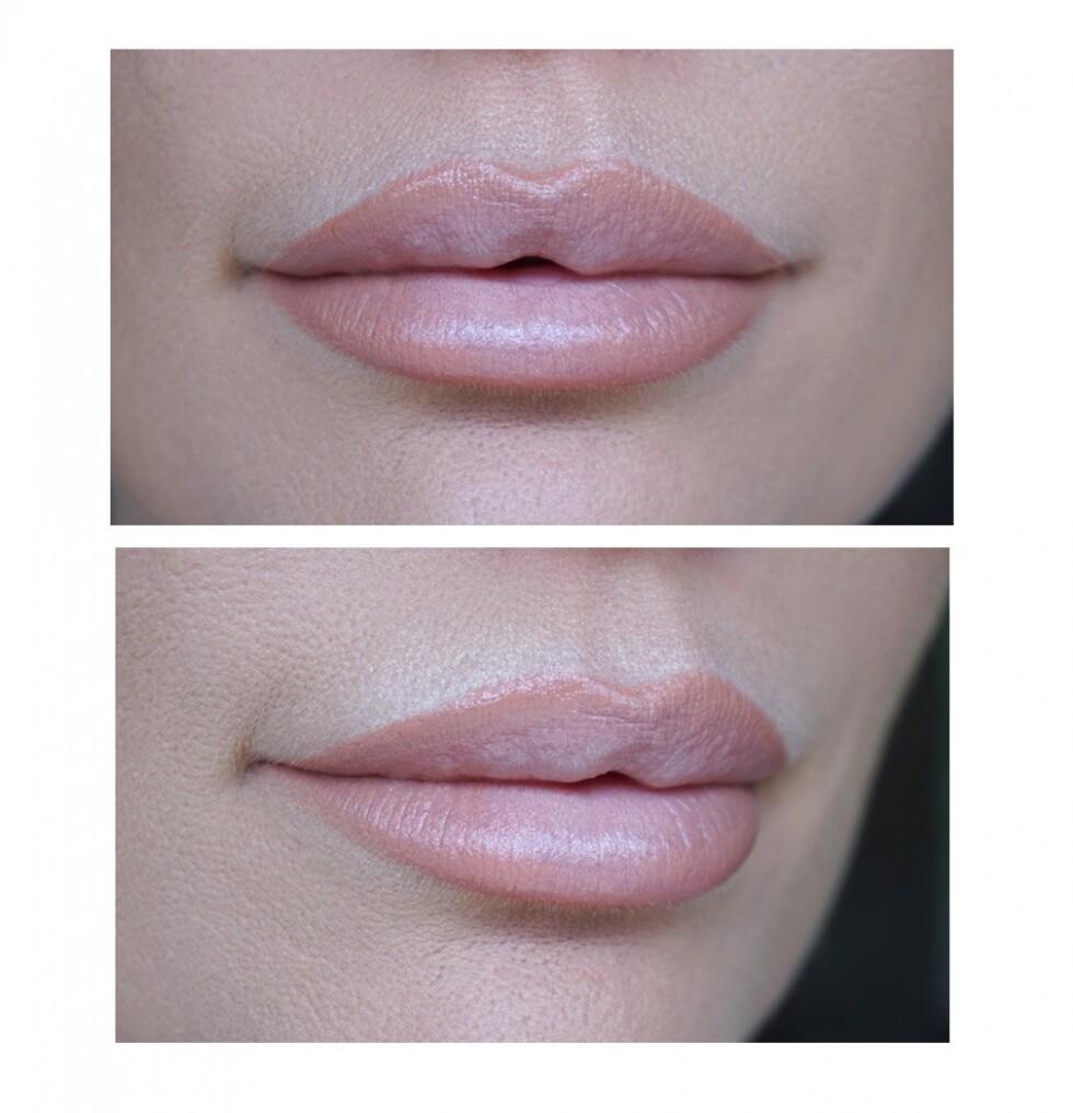 lipsklattt