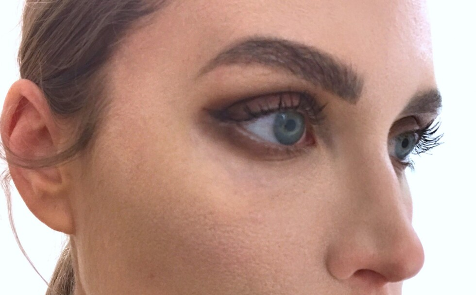 veins-under-eyes-treatment