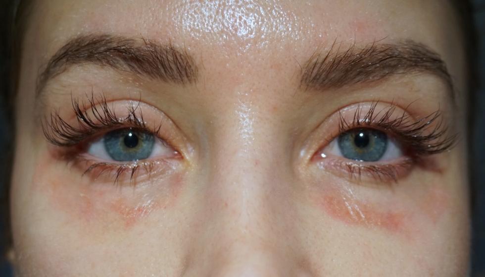 laser under ögonen