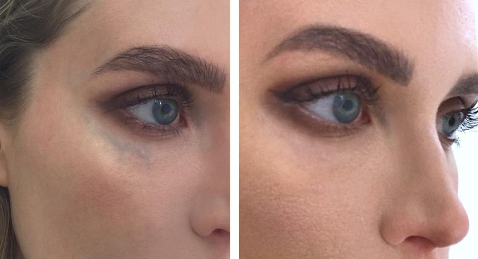 synliga blodådror under ögonen