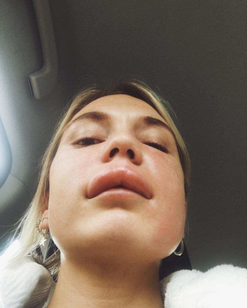 Kan man bli allergisk helt plötsligt