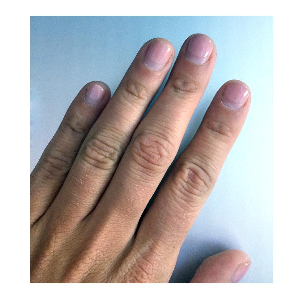 Bita på naglarna