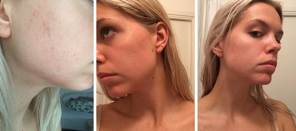 acnatac efter sju månader