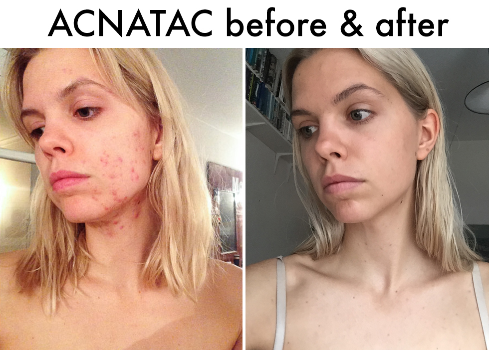 acnatac before and after
