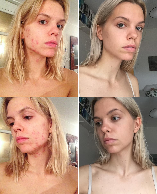 flora-acne